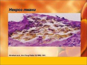 Какие признаки у некроза тканей
