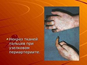 Методы лечения некроза тканей