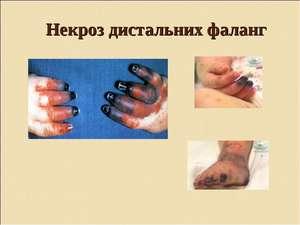 Как правильно лечить некроз тканей